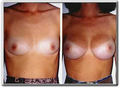 before and after breast implants in Ft Lauderdale