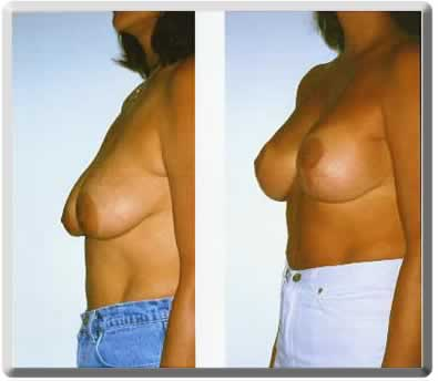 breast lift surgery performed by dr. peter simon in south florida