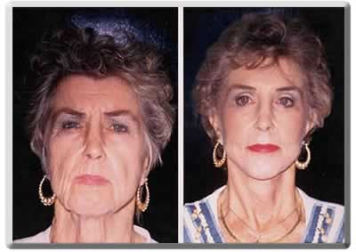 Fort Lauderdale face lift surgery on a woman