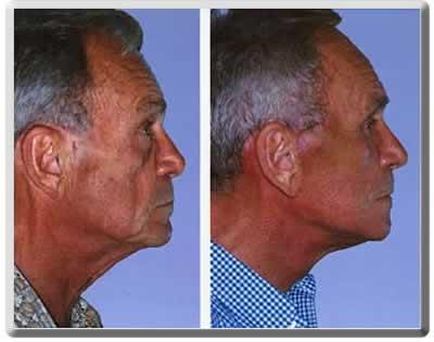Dr. peter trong, facial surgery