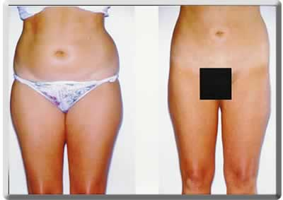 liposuction before and after example from our South Florida plastic surgeon office