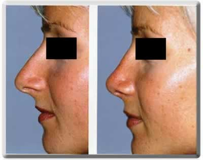 south florida resident, nose reshaping with cosmetic surgery