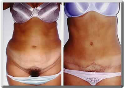 abdominoplasty example - tummy tuck before and after